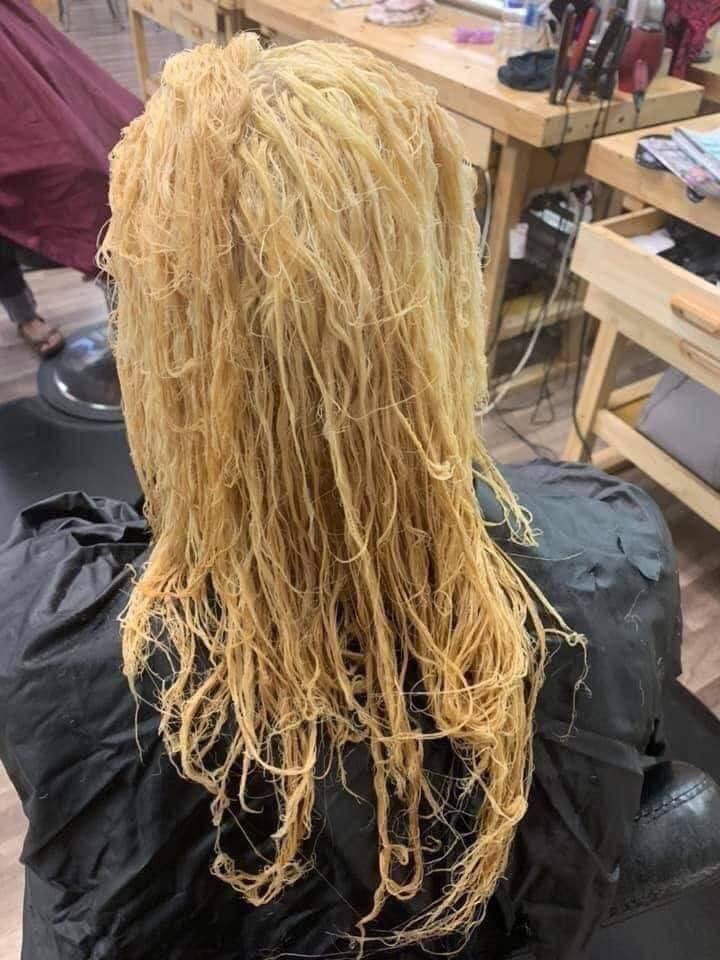 Nổi da gà với tình cảnh cô gái tẩy tóc bị rụng nguyên cả mảng đến mức hói đầu-2