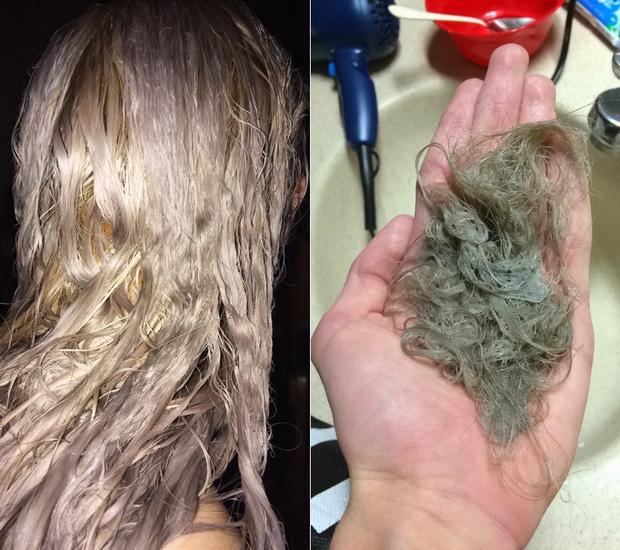 Nổi da gà với tình cảnh cô gái tẩy tóc bị rụng nguyên cả mảng đến mức hói đầu-6