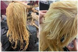 Nổi da gà với tình cảnh cô gái tẩy tóc bị rụng nguyên cả mảng đến mức hói đầu
