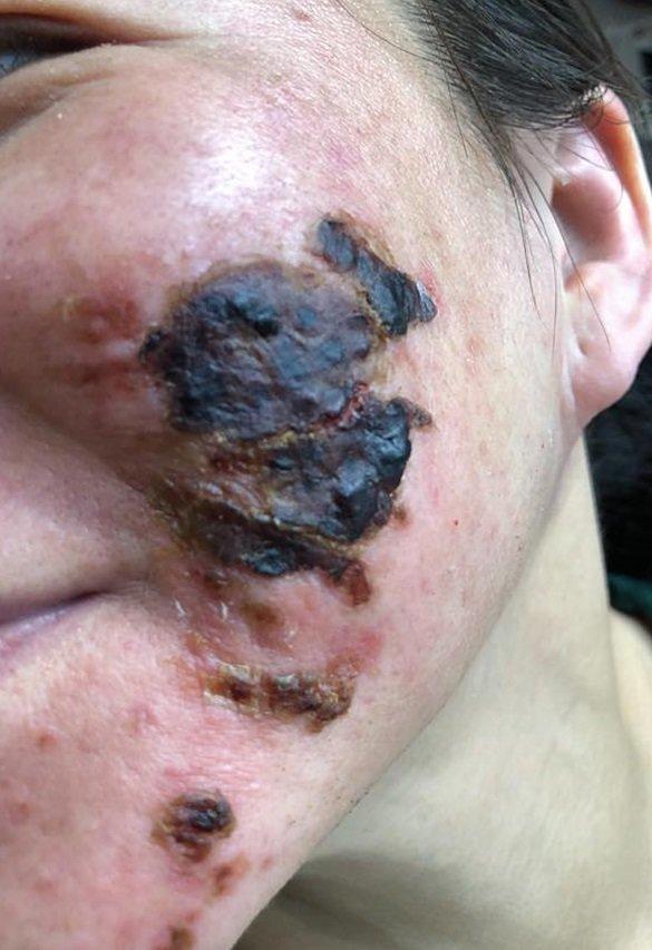 Khóc thét trước những gương mặt bị bỏng nặng sau khi lột da-1