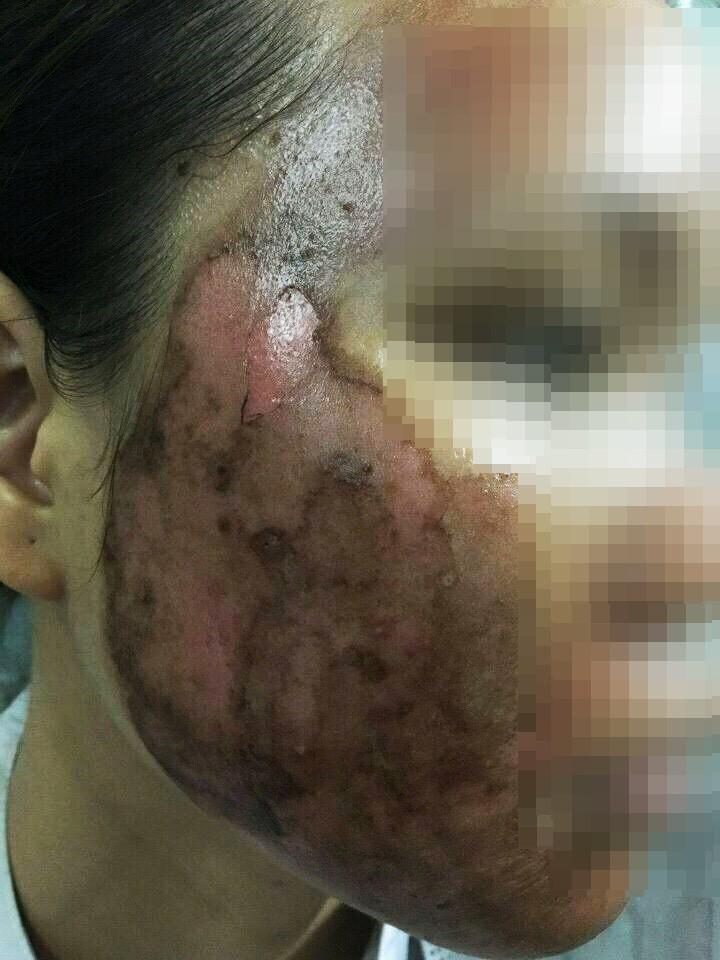 Khóc thét trước những gương mặt bị bỏng nặng sau khi lột da-4
