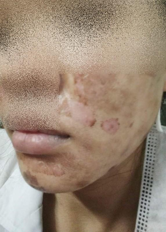 Khóc thét trước những gương mặt bị bỏng nặng sau khi lột da-5