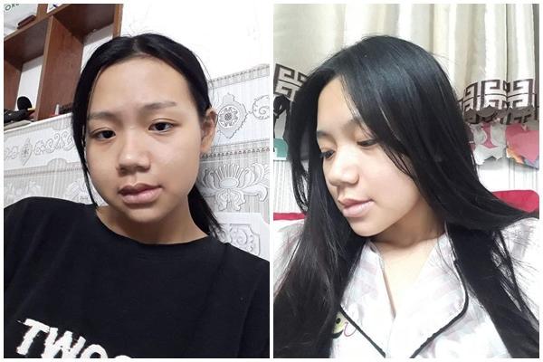 Bị bạn học trêu chọc là xấu xí, cô gái đợi đến 19 tuổi để phẫu thuật thẩm mỹ thành hot girl-3