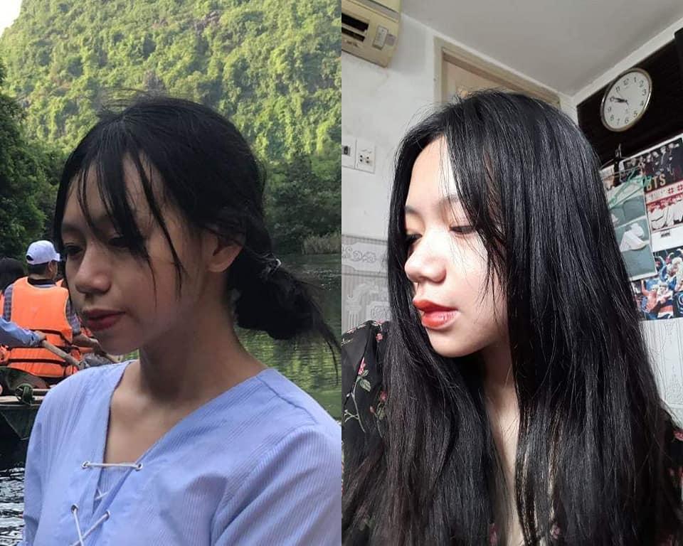 Bị bạn học trêu chọc là xấu xí, cô gái đợi đến 19 tuổi để phẫu thuật thẩm mỹ thành hot girl-6