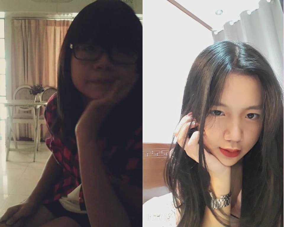 Bị bạn học trêu chọc là xấu xí, cô gái đợi đến 19 tuổi để phẫu thuật thẩm mỹ thành hot girl-7