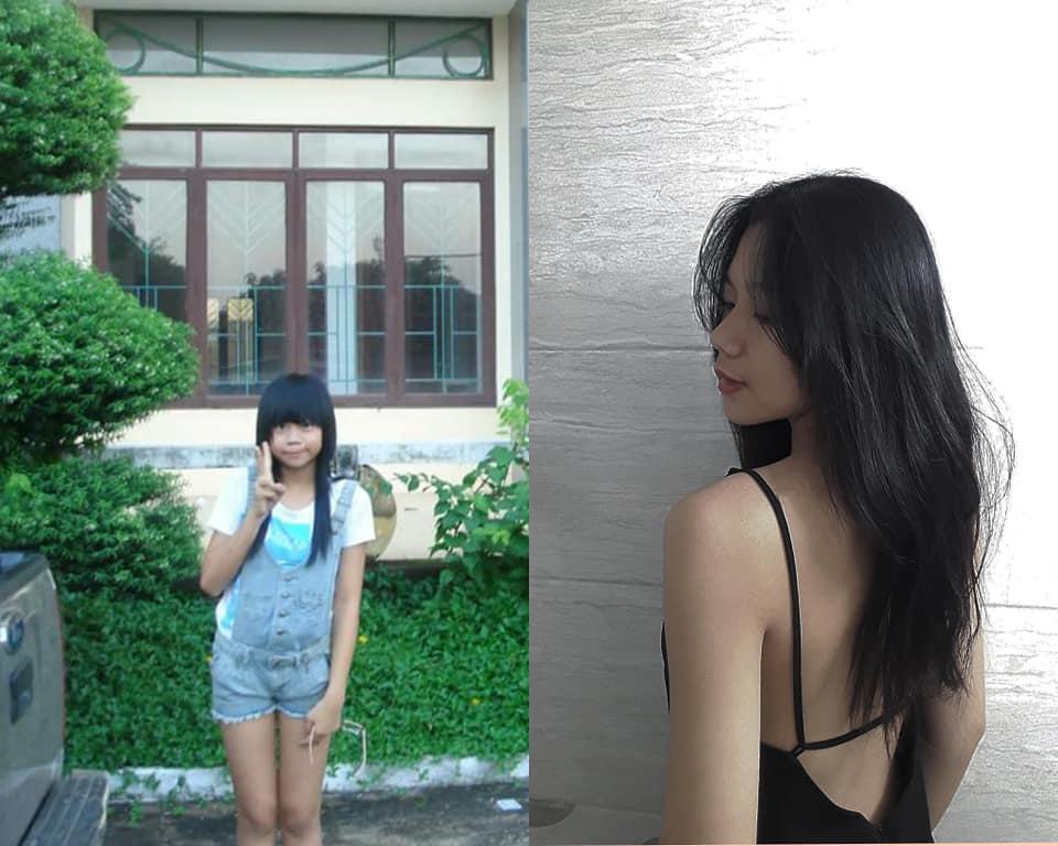 Bị bạn học trêu chọc là xấu xí, cô gái đợi đến 19 tuổi để phẫu thuật thẩm mỹ thành hot girl-8