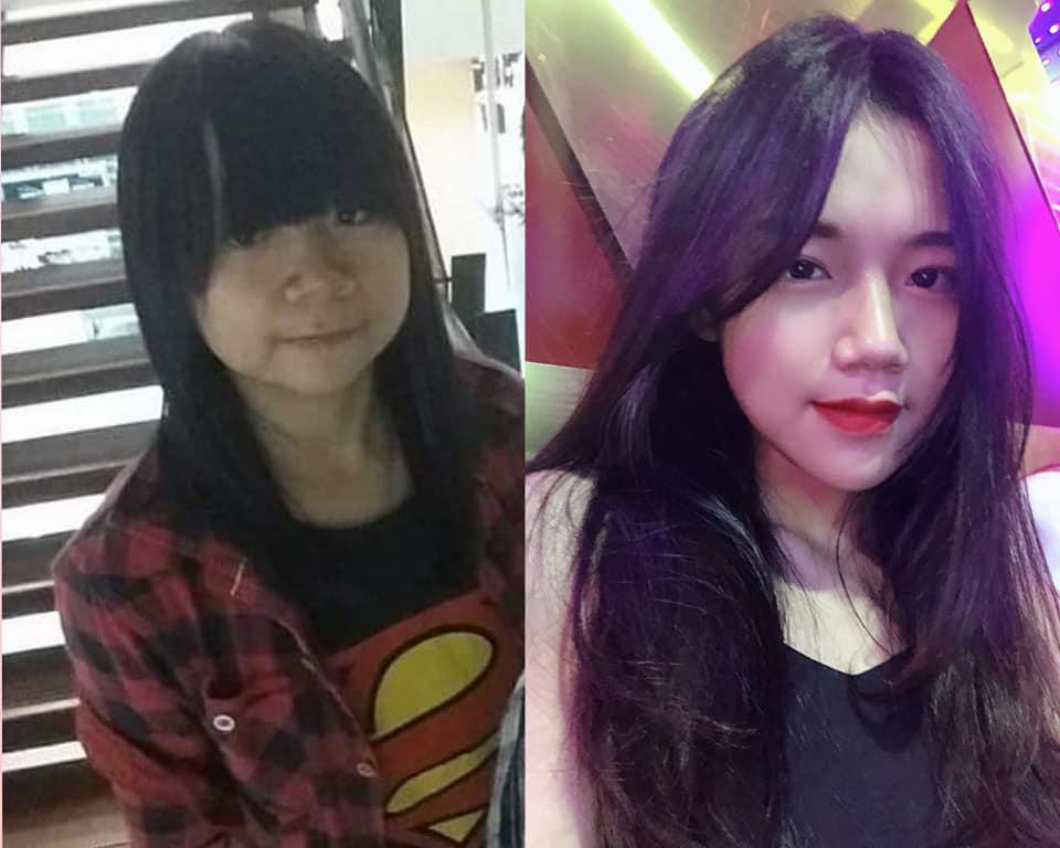 Bị bạn học trêu chọc là xấu xí, cô gái đợi đến 19 tuổi để phẫu thuật thẩm mỹ thành hot girl-9