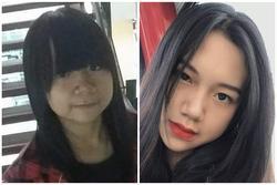 Bị bạn học trêu chọc là xấu xí, cô gái đợi đến 19 tuổi để phẫu thuật thẩm mỹ thành hot girl