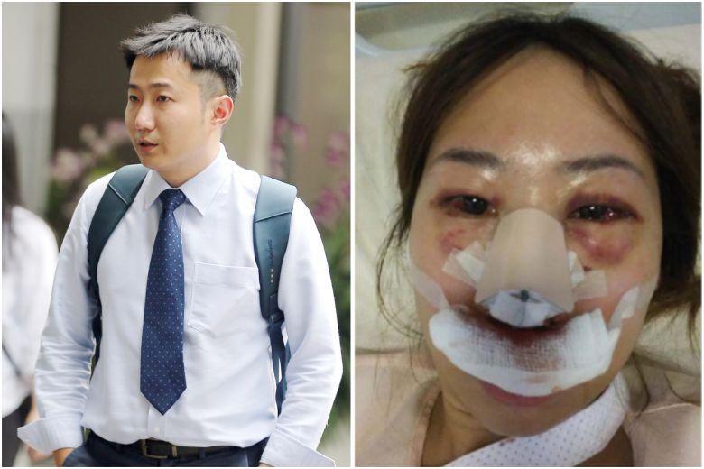 Bác sĩ Singapore hành hung bạn gái vì bị từ chối quan hệ tình dục-1