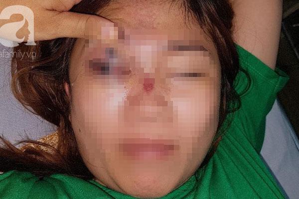 TP.HCM: Một phụ nữ 28 tuổi ngưng tim, ngưng thở nghi do sốc phản vệ khi chuẩn bị sửa mũi tại thẩm mỹ viện-1