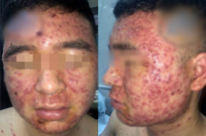 Chàng trai chi chít mụn mủ khắp mặt và người sau khi dùng thuốc nam bán trên mạng xã hội-1