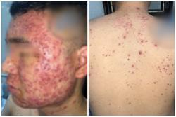 Chàng trai chi chít mụn mủ khắp mặt và người sau khi dùng thuốc nam bán trên mạng xã hội