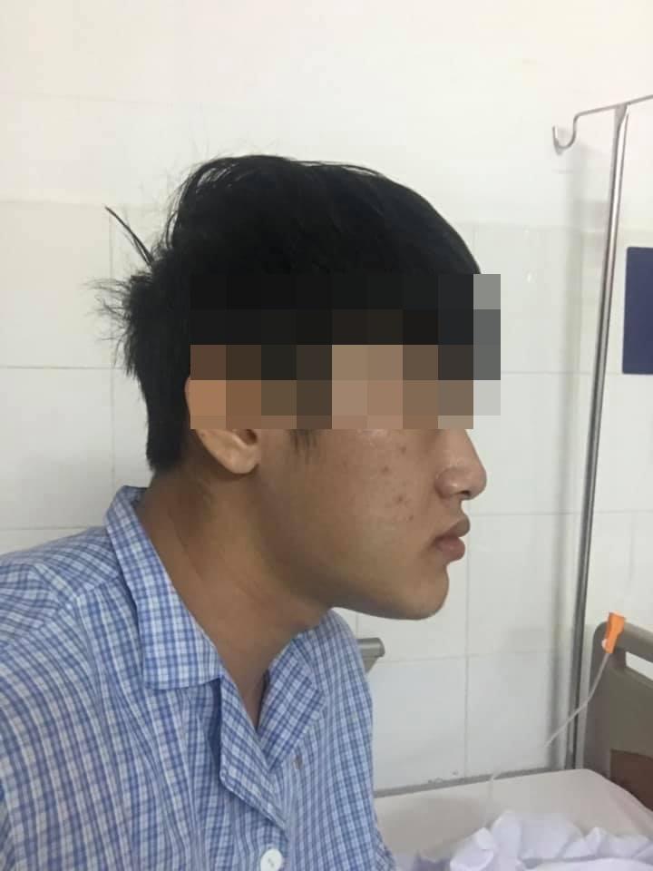 Sức mạnh vi diệu của phẫu thuật thẩm mỹ: Biến chàng trai cằm nhô dài ra phía trước trở thành soái ca-5