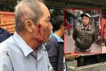Clip: Cụ ông 80 tuổi bị gã xe ôm dùng súng cao su bắn vào mặt vì 'tranh giành địa bàn' ở Hà Nội