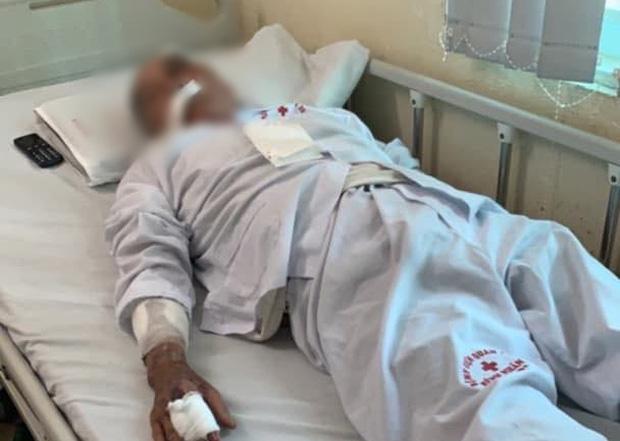 Clip: Cụ ông 80 tuổi bị gã xe ôm dùng súng cao su bắn vào mặt vì tranh giành địa bàn ở Hà Nội-3
