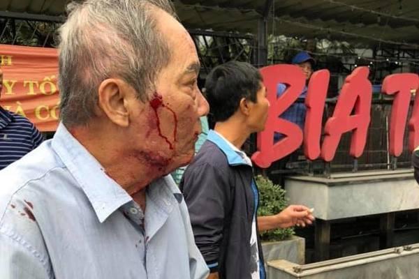 Clip: Cụ ông 80 tuổi bị gã xe ôm dùng súng cao su bắn vào mặt vì tranh giành địa bàn ở Hà Nội-1