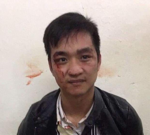 Hà Nội: Cướp tiệm vàng, nam thanh niên bị công an tóm gọn-1