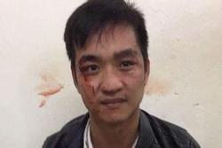 Hà Nội: Cướp tiệm vàng, nam thanh niên bị công an tóm gọn