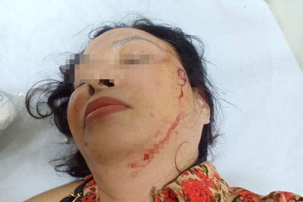 Nghi án người phụ nữ bị chồng cũ bạo hành, doạ giết cả gia đình trong suốt nhiều năm-2