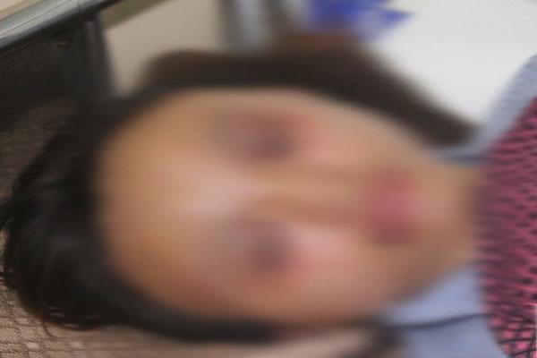 Bắc Giang: Công an vào cuộc điều tra vụ bố đẻ đánh con gái nhập viện khi đi chơi về muộn-1