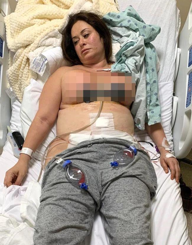 Hoại tử ngực sau khi dao kéo vòng một-2