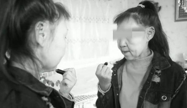Thiếu nữ 15 tuổi bỏ học vì gương mặt như bà lão 60-1