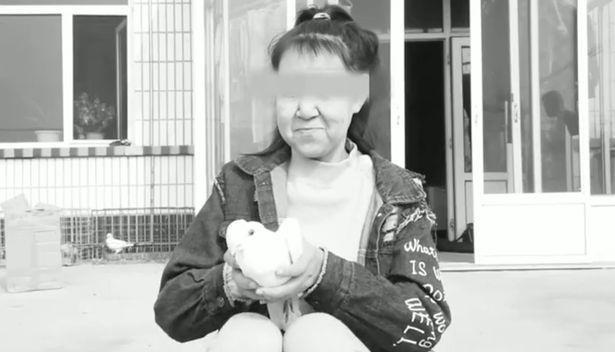 Thiếu nữ 15 tuổi bỏ học vì gương mặt như bà lão 60-2