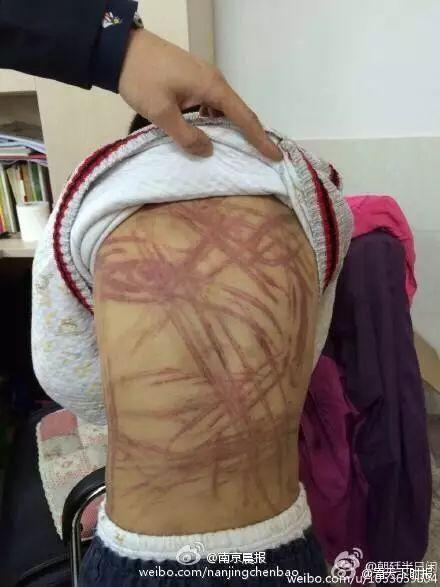 Bé trai bị mẹ bạo hành: Con chỉ còn mỗi mẹ thôi-2
