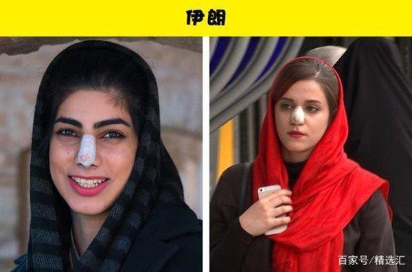 Không phải cứ da trắng, mũi cao là đẹp, đây là tiêu chuẩn sắc đẹp riêng ở các quốc gia-7