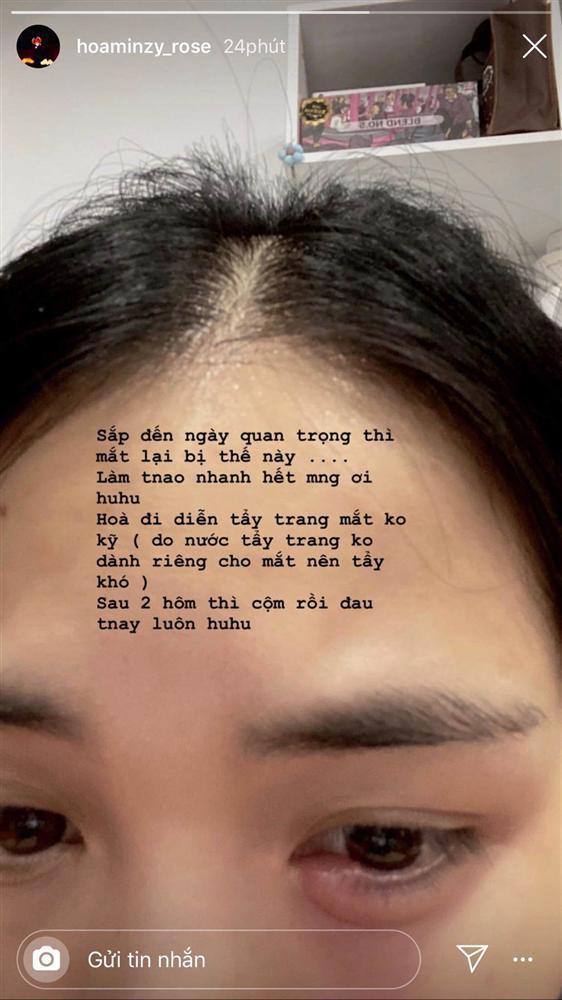 Tẩy trang không đúng cách, Hòa Minzy cuống cuồng cầu cứu cộng đồng mạng cách chữa đôi mắt sưng phồng-2