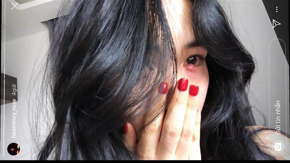 Tẩy trang không đúng cách, Hòa Minzy cuống cuồng cầu cứu cộng đồng mạng cách chữa đôi mắt sưng phồng-3