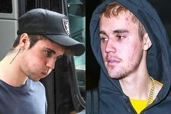 Vì sao Justin Bieber ngày càng tiều tụy, xuống dốc ngoại hình?