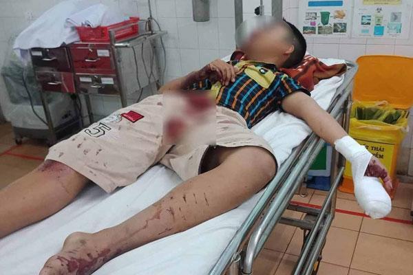 Gia Lai: Làm pháo tự chế bằng bột diêm, nam sinh bị thương nặng-1