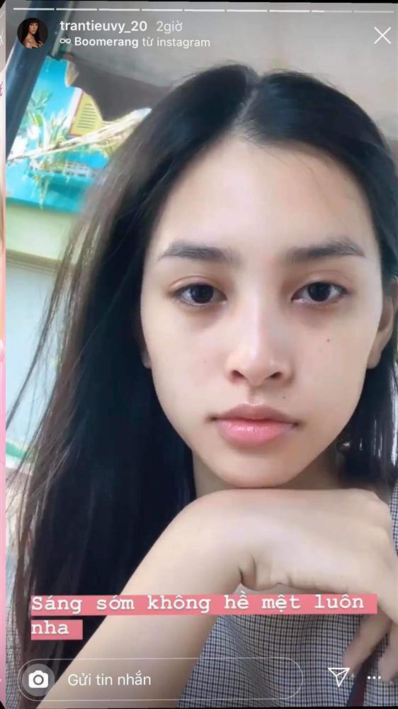 Mặt mộc đẹp không tì vết, nhưng mỹ nhân Việt vẫn mất điểm vì đôi mắt thâm đen-1