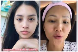 Mặt mộc đẹp không tì vết, nhưng mỹ nhân Việt vẫn mất điểm vì đôi mắt thâm đen