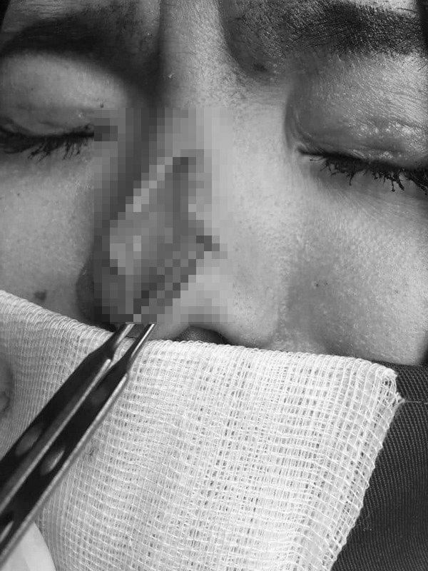 Cô gái bị bục da mũi, lộ hết sụn độn hậu nâng mũi: Đâu là bài học cho chị em?-4