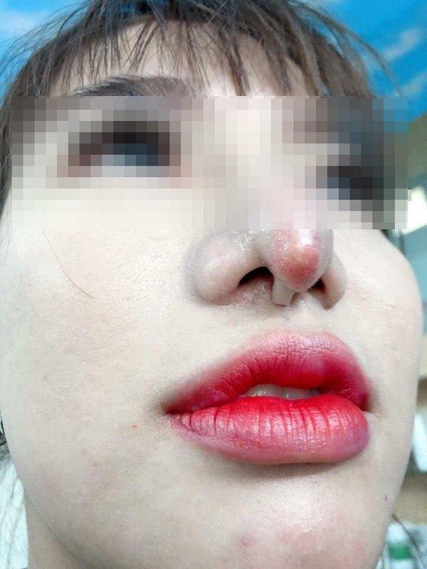 Cô gái bị bục da mũi, lộ hết sụn độn hậu nâng mũi: Đâu là bài học cho chị em?-7