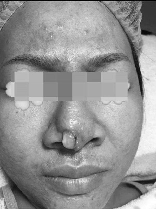 Cô gái bị bục da mũi, lộ hết sụn độn hậu nâng mũi: Đâu là bài học cho chị em?-8