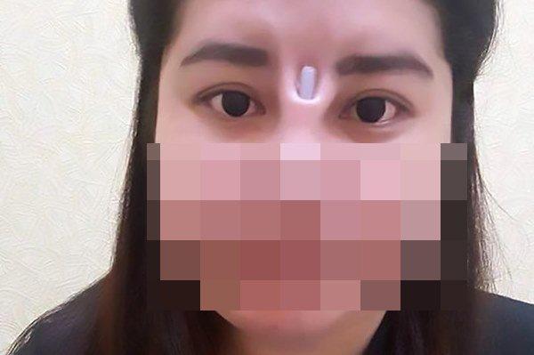 Cô gái bị bục da mũi, lộ hết sụn độn hậu nâng mũi: Đâu là bài học cho chị em?-9