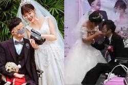 Chuyện tình của cô gái Trung Quốc và chàng trai gương mặt biến dạng