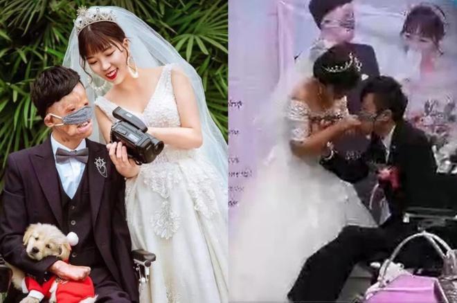 Chuyện tình của cô gái Trung Quốc và chàng trai gương mặt biến dạng-1