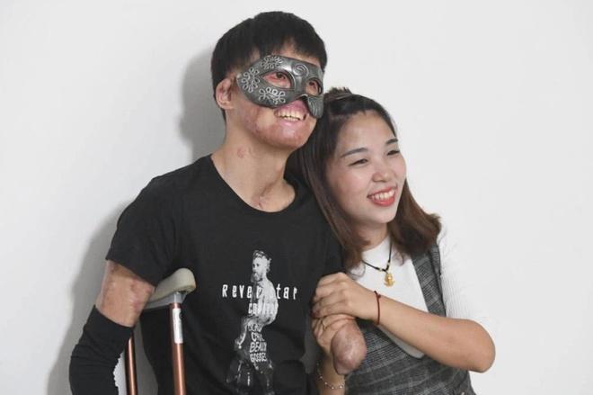 Chuyện tình của cô gái Trung Quốc và chàng trai gương mặt biến dạng-3