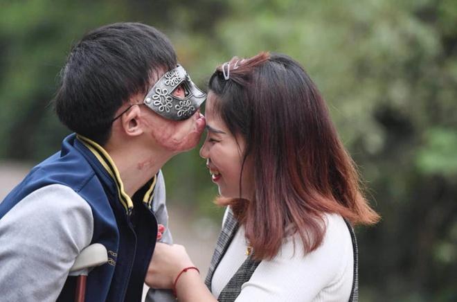Chuyện tình của cô gái Trung Quốc và chàng trai gương mặt biến dạng-4