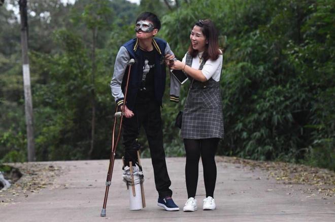 Chuyện tình của cô gái Trung Quốc và chàng trai gương mặt biến dạng-6