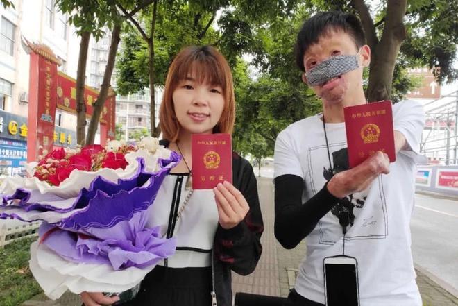 Chuyện tình của cô gái Trung Quốc và chàng trai gương mặt biến dạng-7