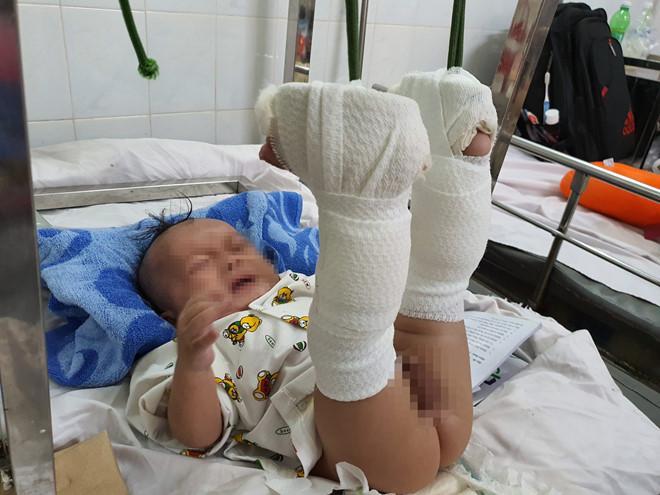 Phẫn nộ: Em bé 4 tháng tuổi ở TP HCM nghi bị bố ruột dạy dỗ đến mức gãy chân, xuất huyết não-2