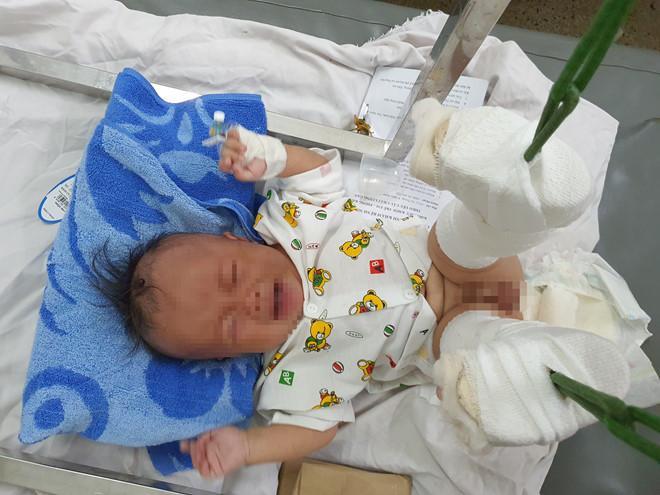 Phẫn nộ: Em bé 4 tháng tuổi ở TP HCM nghi bị bố ruột dạy dỗ đến mức gãy chân, xuất huyết não-4