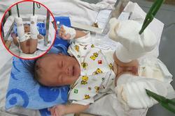 Phẫn nộ: Em bé 4 tháng tuổi ở TP HCM nghi bị bố ruột 'dạy dỗ' đến mức gãy chân, xuất huyết não