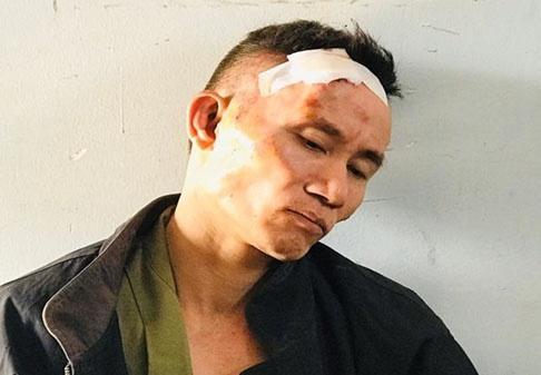 Kẻ ôm lựu đạn cố thủ ở TP.HCM bị bắt khi đi xe cảnh sát-1