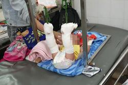 Người cha bạo hành con 4 tháng tuổi xuất huyết não, gãy xương ở Sài Gòn thừa nhận do mâu thuẫn với vợ